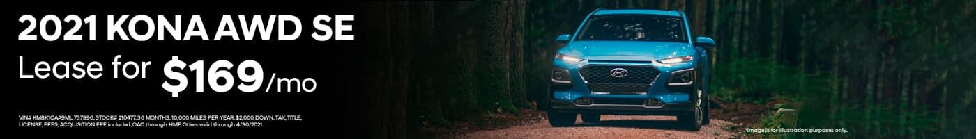 Hyundai Kona Lease Offer